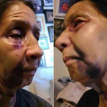 Suspect arrested after report of 70-year-old woman badly hurt in racially motivated attack on bus in Eagle Rock